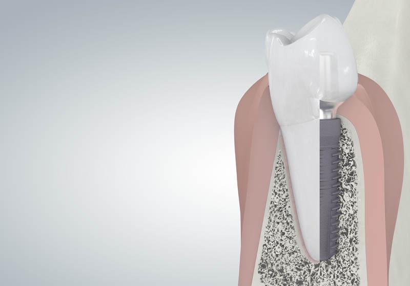 Beültetett implantátum - keresztmetszeti nézet
