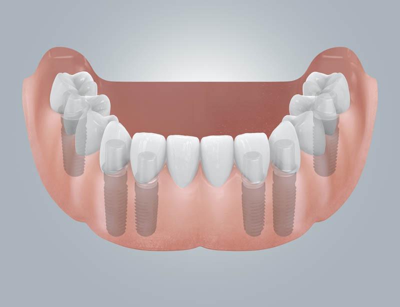 Fogatlan mandibula helyreállítása implantátumokkal és hídpótlással