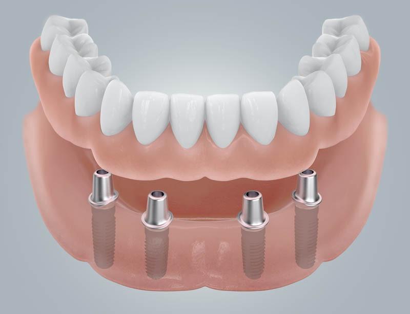 Fogatlan mandibula helyreállítása implantátummal és koronapótlással