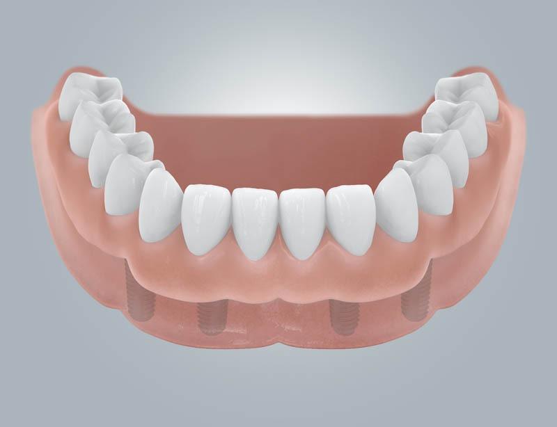 Fogatlan mandibula helyreállítása kivehető protézissel
