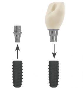 Fogpótlás CAD/CAM titán alapra