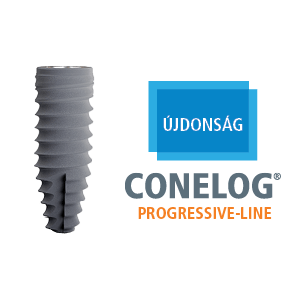 conelog progressive-line