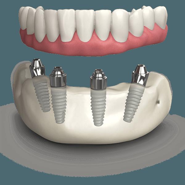 TeethXpress BioHorizons