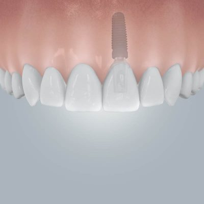 Szóló foghiány implantátummal pótolva