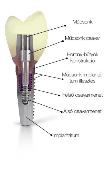CAMLOG implantátum belső felépítése