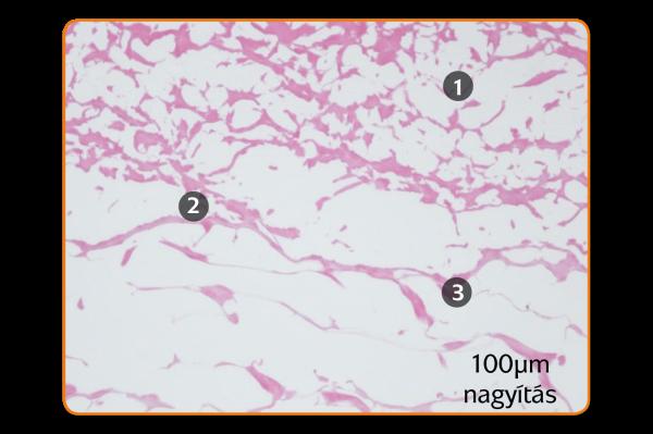 histology-mucograft